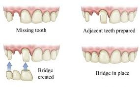 Dental Bridge steps