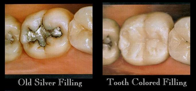 Tooth composite-fillings