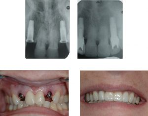 dental implant x ray