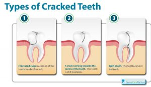 types-of-cracked-tooth