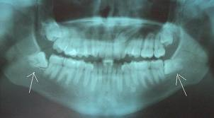 wisdom-teeth-panorex